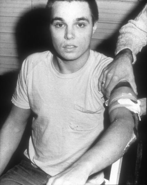 Chris Burden, medication after 'Shoot' Chris Burden viene medicato al braccio subito dopo la performance 'Shoot'. cult stories cultstories cinema cult story cultstory art culture music ipse dixit aneddoti citazioni frasi famose aforismi immagini foto personaggi cultura musica storie facts fatti celebrità vip cult chris burden shoot chris burden artista chris burden wikipedia chris burden urban light chris burden extreme measures chris burden art chris burden performance chris burden interview chris burden flying steamroller chris burden velvet water chris burden urban light at lacma chris burden beam drop chris burden biography chris burden book chris burden b car chris burden bridges chris burden brandeis chris burden bed peace chris burden beam chris burden boeing 747 chris burden beam drop inhotim chris burden cars chris burden commercials chris burden coyote chris burden crawling through glass chris burden coyote stories chris burden chiropractor chris burden city chris burden.com chris cornell burden in my hand chris burden pizza city chris burden chris burden documentary chris burden disappearing chris burden david bowie chris burden beam drop 1984 chris burden of dracula chris burden beam drop brazil chris murray burden of disease chris burden beam drop inhotim 2008 chris burden extreme measures book chris burden exposing the foundation chris burden early life chris burden facebook chris burden full financial disclosure chris burden glass chris burden gagosian chris burden gallery chris burden ghost ship chris burden instagram chris burden icarus chris cornell burden in my hand acoustic who is chris burden chris burden joe the lion christopher burden jr christopher j burden chris burden lacma chris burden lights chris burden lamp posts chris burden linkedin chris burden life chris burden los angeles chris burden lacma urban light chris burden la chris burden metropolis ii video chris burden metropolis vimeo chris burden motorcycle chris burden magasin 3 chris burden new museum chris burden new york chris burden official website chris burden opere chris burden presents chris burden promo chris burden photography chris burden postmodernism chris burden poem for la chris burden porsche chris burden pdf chris burden quotes chris burden rugby chris burden review chris burden tv commercials chris burden tv hijack chris burden twitter chris burden tate chris burden the reason for the neutron bomb chris burden through night softly 1973 chris burden the other vietnam memorial chris burden usd chris burden ucla chris burden uc irvine chris burden urban light address chris burden ubuweb chris burden youtube chris burden urban lights chris burden volkswagen chris burden video chris burden video art chris burden vietnam memorial chris burden 2013
